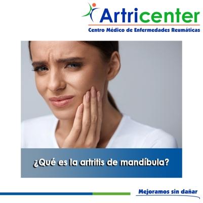 Qué es la artritis de mandíbula-artricenter