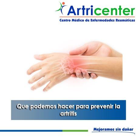 Que podemos hacer para prevenir la artritis-artricenter