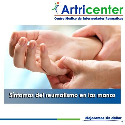Síntomas del reumatismo en las manos-artricenter