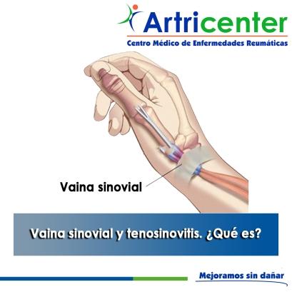 Vaina sinovial y tenosinovitis - artricenter