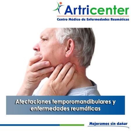 Afectaciones temporomandibulares y enfermedades reumáticas-artricenter