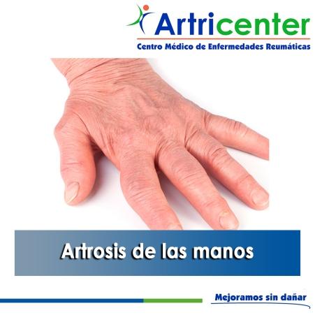 Artrosis de las manos-artricenter