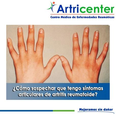 Cómo sospechar que tengo síntomas articulares de artritis reumatoide-artricenter