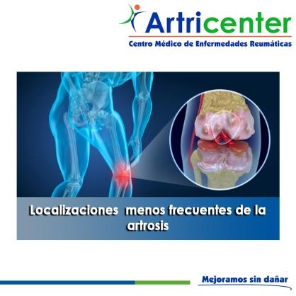 Localizaciones menos frecuentes de la artrosis-artricenter