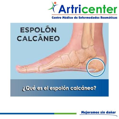 Qué es el espolón calcáneo-artricenter