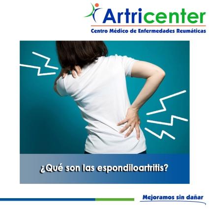 Qué son las espondiloartritis-artricenter