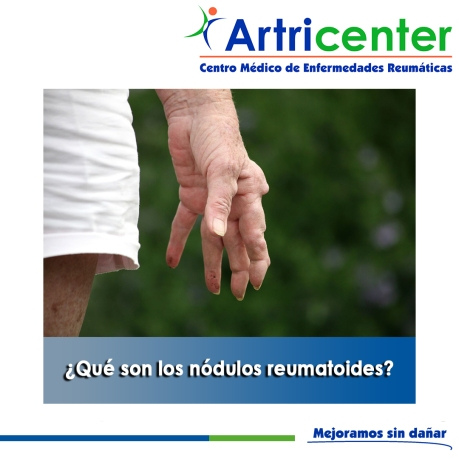 Qué son los nódulos reumatoides-artricenter